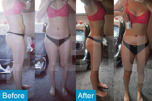 weight loss supplement before after